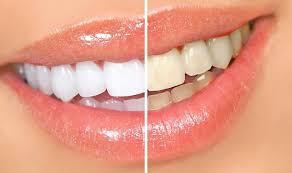 طرق بسيطة لتبييض الأسنان