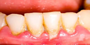 التهاب للثة الاسنان