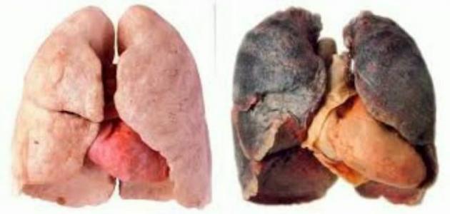 أضرار التبغ على صحة الانسان